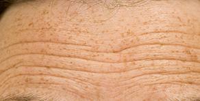 Anti-Aging Skin Treatments (Men)