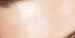 Oily Skin (Men)